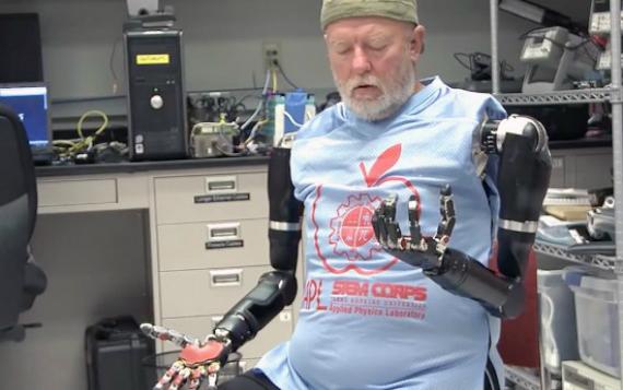 prosthetics-570