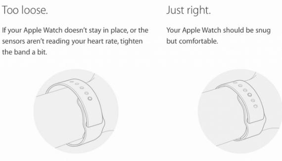 apple watch irritation