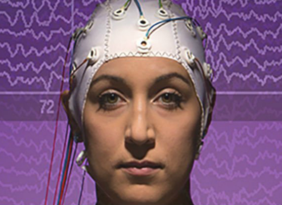brain-scan-570