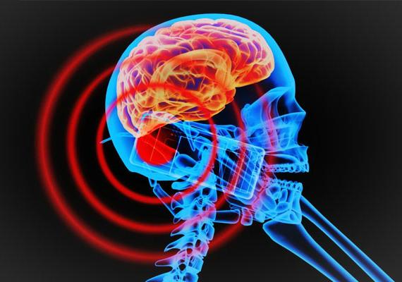 brain-smartphone-570