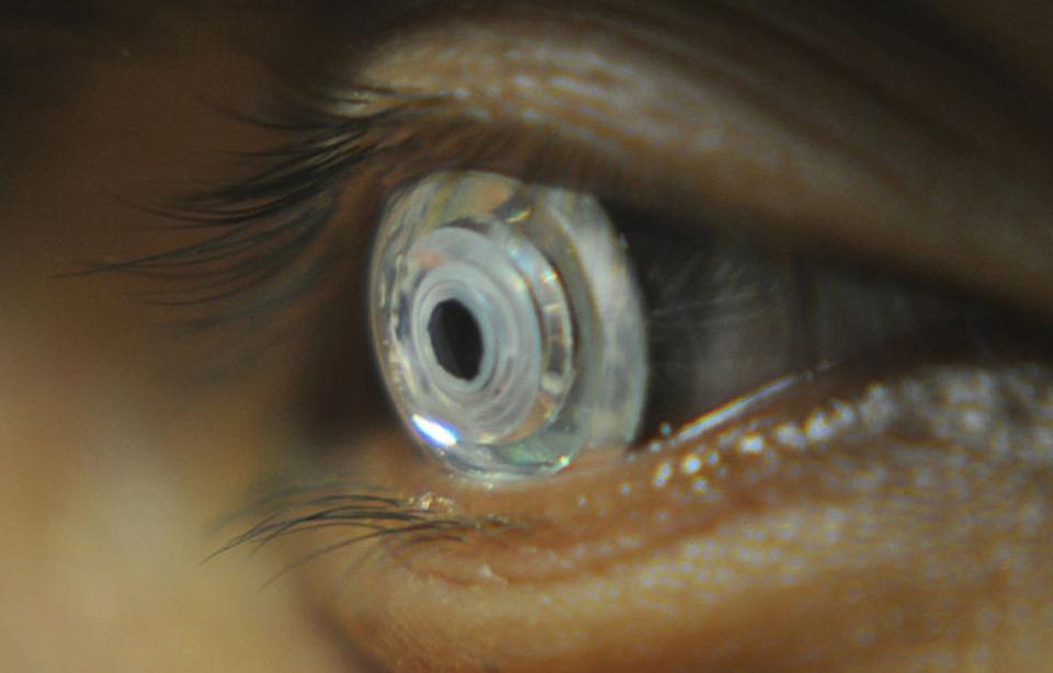 βιομιμητικούς φακούς επαφής