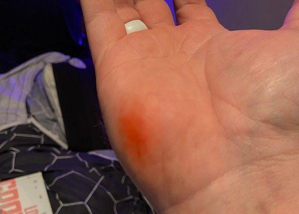 Κάτοχος Surface Duo ηλεκτρίστηκε και έκαψε το χέρι του στην προσπάθειά του να το φορτίσει