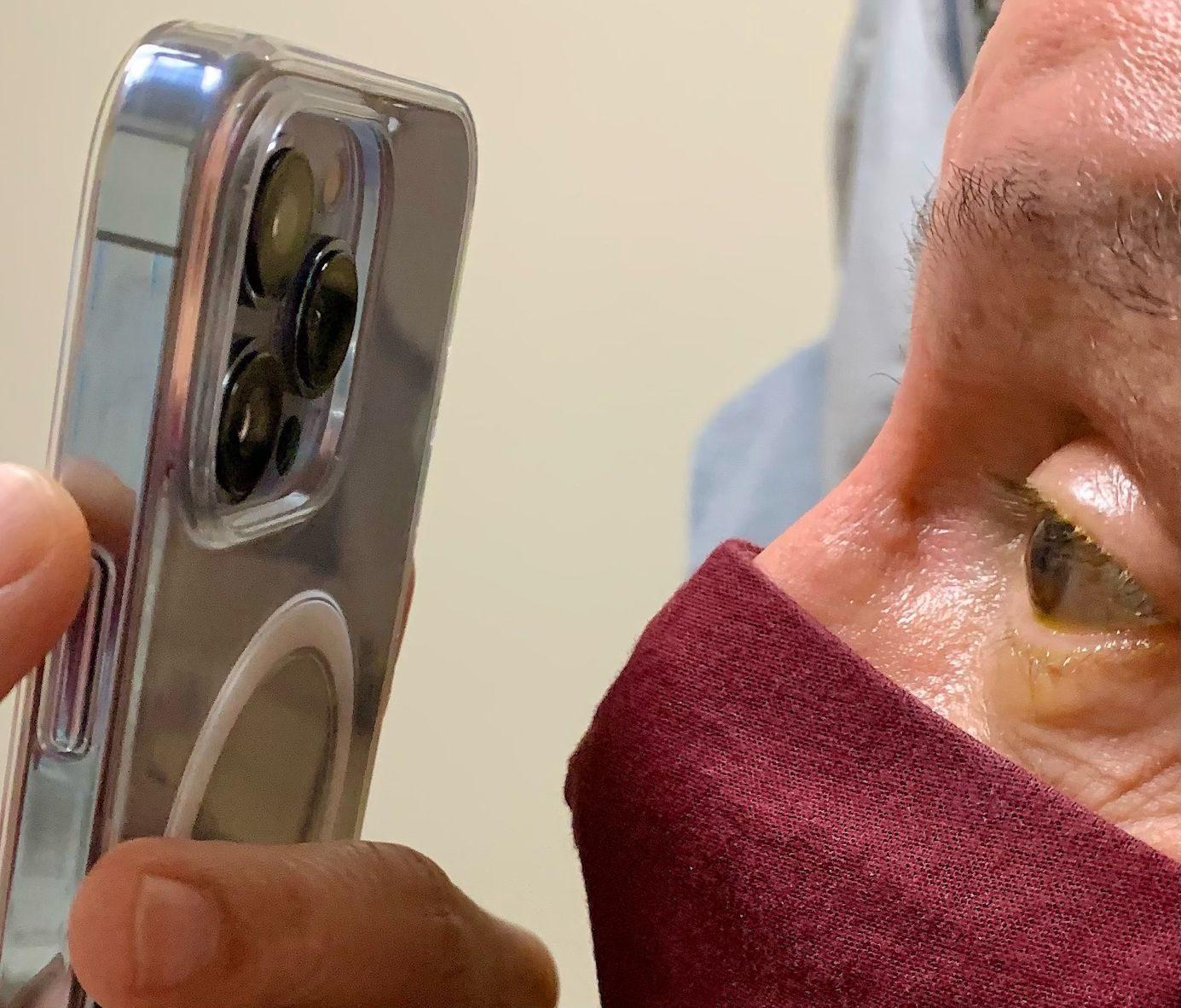 iPhone 13 Pro Max: Γιατρός το χρησιμοποιεί για εξέταση ματιών